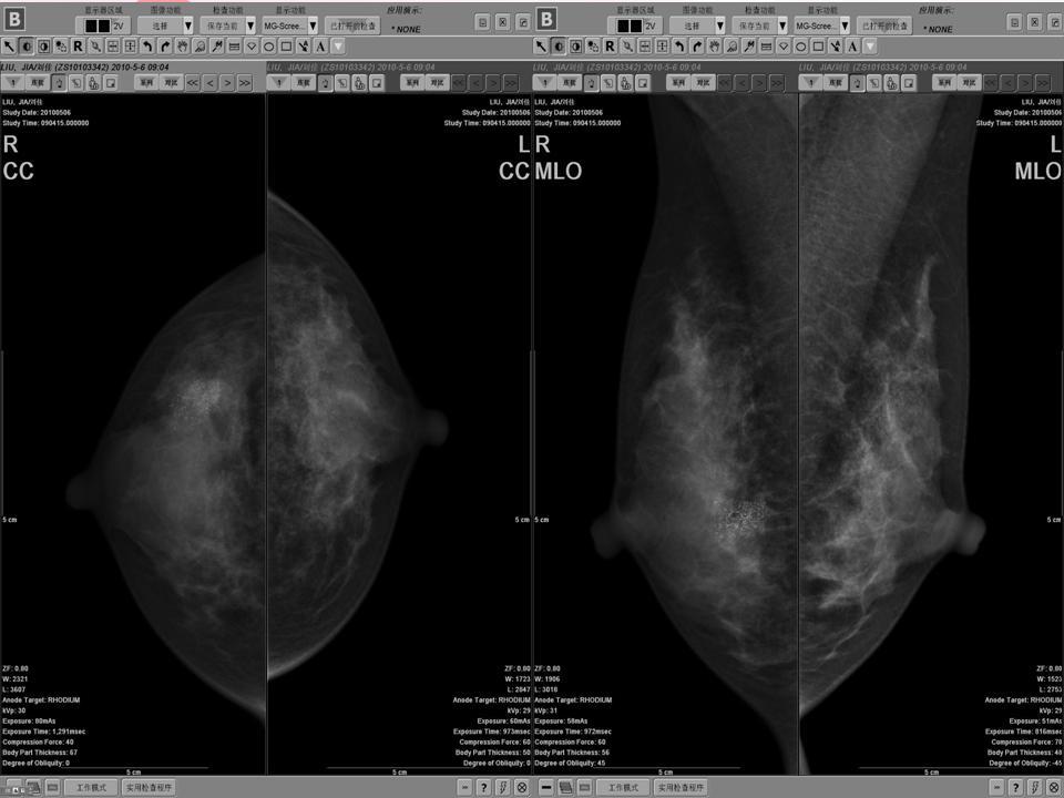 浸润性导管癌 腋窝淋巴结转移 年轻患者
