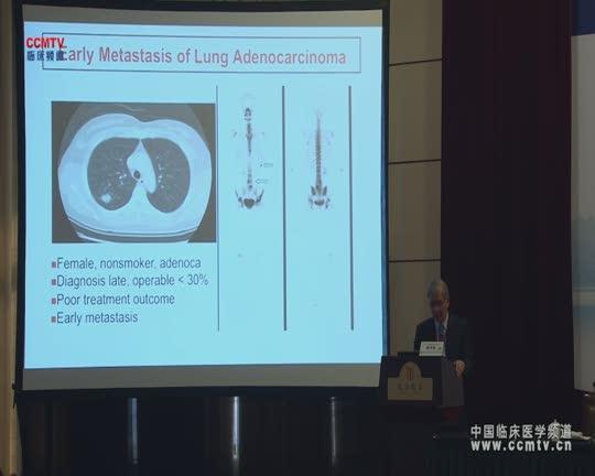 肺癌 诊疗策略 综合治疗 个体化 杨泮池:东亚肺癌个体化治疗的实施:前瞻与未来发展方向