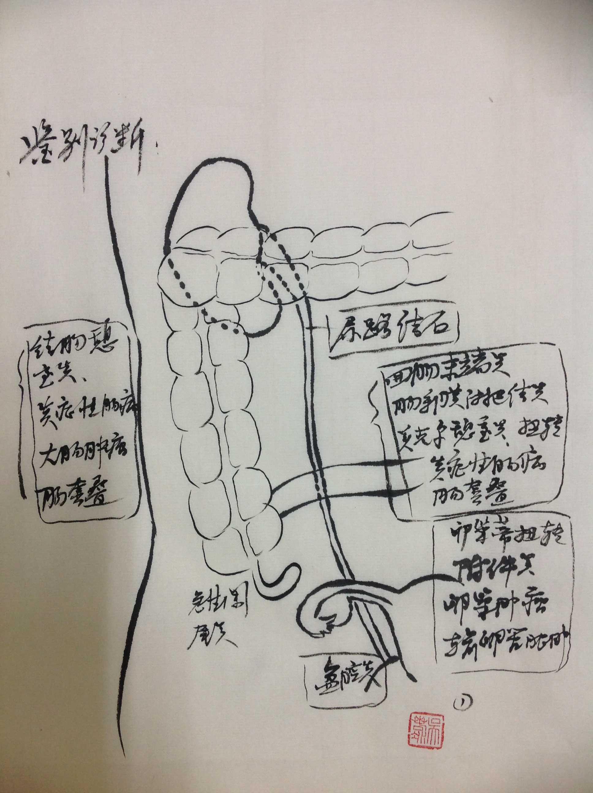 消化道疾病 外科讲坛 阑尾炎 手绘图 吴小兵:阑尾切除术 手绘图