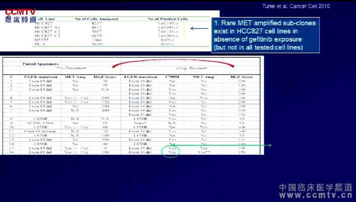 肺癌 靶向治疗 cMET K O'Byrne:cMET阳性NSCLC的治疗