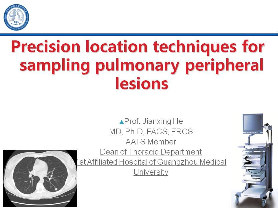 肺癌 诊断 活检 何建行:精确定位技术在肺外周病变采样中的应用
