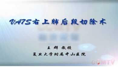 肺癌 手术 微创 胸腔镜 王群:右上肺后段切除术