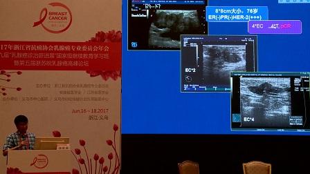 乳腺癌 外科讲坛 郭贵龙:新辅助化疗后保乳的策略
