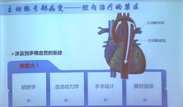 血管病 外科讲坛 腔内治疗 成咏:激光原位开窗治疗累及弓步分支的主动脉疾病围手术期护理