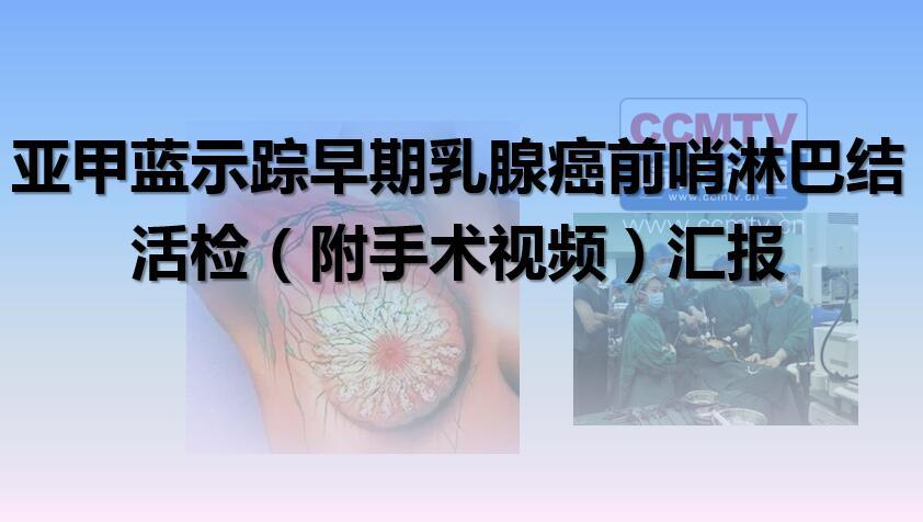 亚甲蓝示踪早期乳腺癌前哨淋巴结活检(附手术视频)汇报