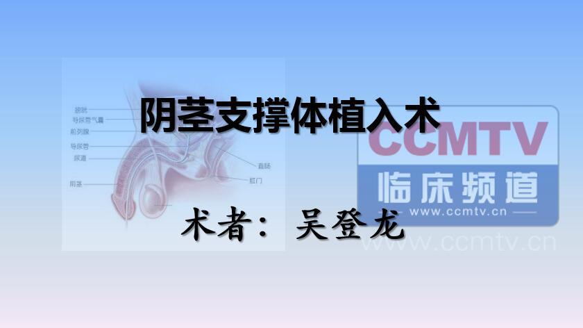 泌尿系疾病 手术 支撑体 阴茎 吴登龙:阴茎支撑体植入术