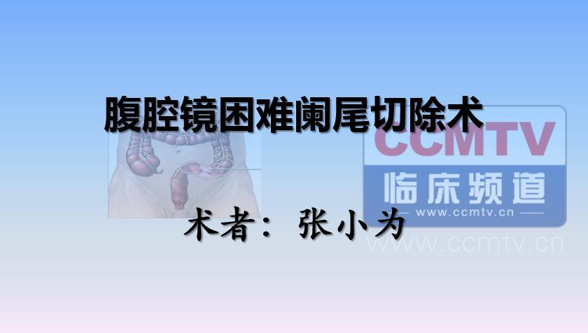 张小为:腹腔镜困难阑尾切除术