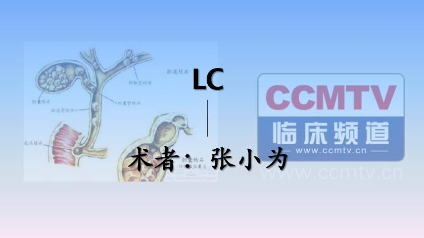 张小为:LC