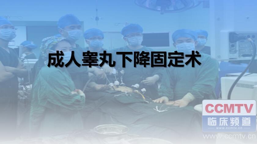 男科疾病 手术 睾丸 隐睾 睾丸下降固定术 成人睾丸下降固定术