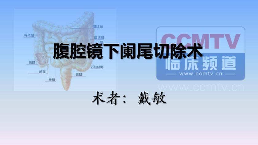 戴敏:腹腔镜下阑尾切除术