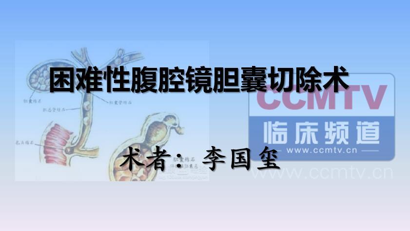 李国玺:困难性腹腔镜胆囊切除术