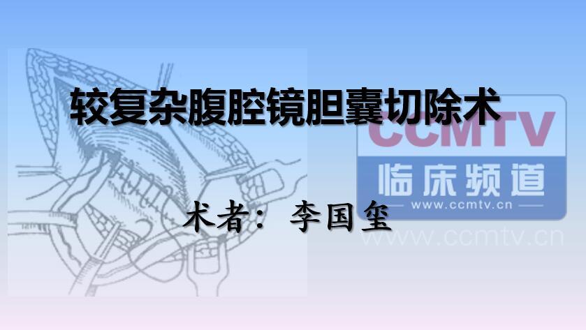李国玺:较复杂腹腔镜胆囊切除术