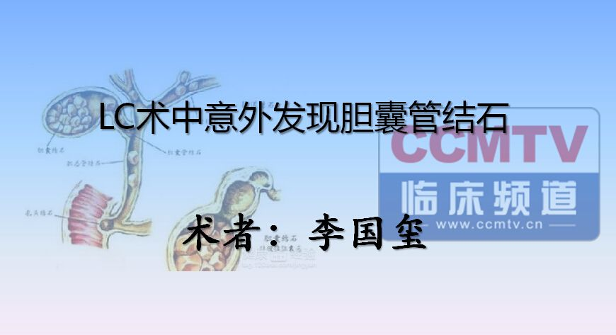 胆系疾病 手术 胆结石 微创 腹腔镜 李国玺:LC术中意外发现胆囊管结石
