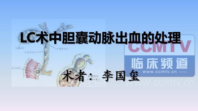 李国玺:LC术中胆囊动脉出血的处理