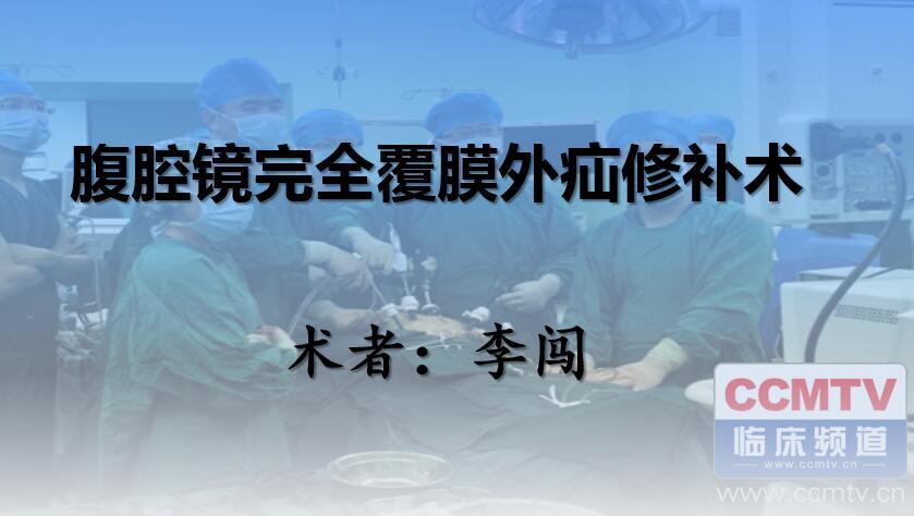 疝气 手术 腹腔镜 微创 TEP 腹股沟疝 李闯:腹腔镜完全腹膜外腹股沟疝修补术(TEP)