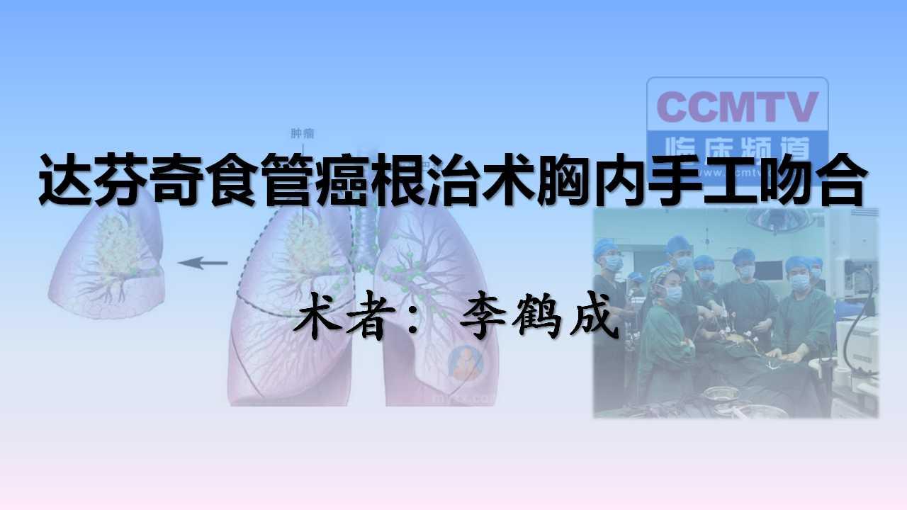 李鹤成:达芬奇食管癌根治术胸内手工吻合