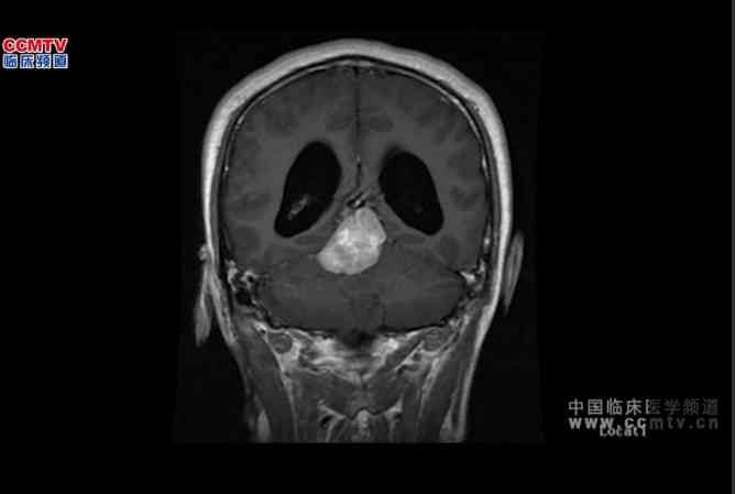 中枢神经系统肿瘤 手术 脑肿瘤  楼美清:内镜下松果体区肿瘤切除术