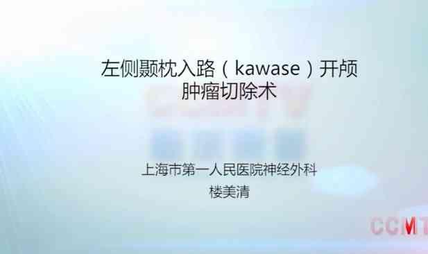 中枢神经系统肿瘤 手术 脑肿瘤 楼美清:左侧颞枕入路(kawase)开颅肿瘤切除术 脑肿瘤
