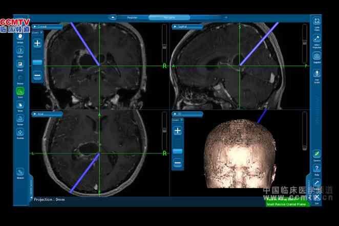 中枢神经系统肿瘤 手术 脑肿瘤 楼美清:经蝶垂体瘤切除术