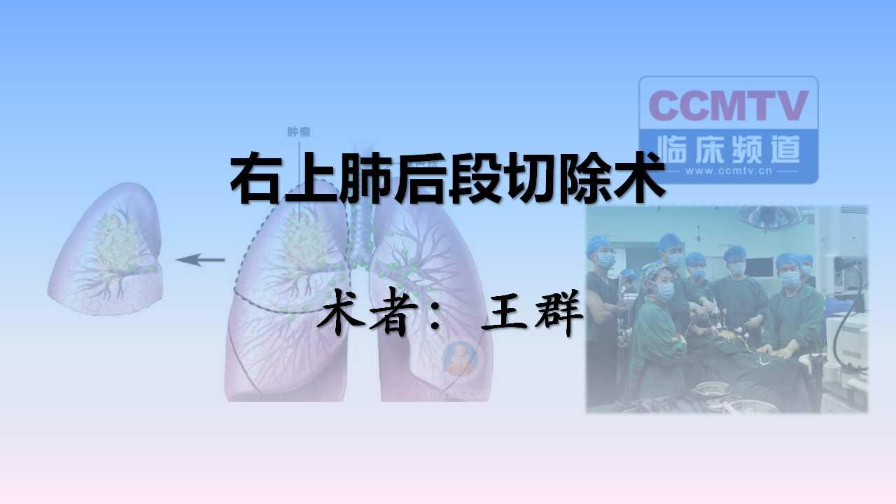 肺癌 手术 微创 王群:右上肺后段切除术。
