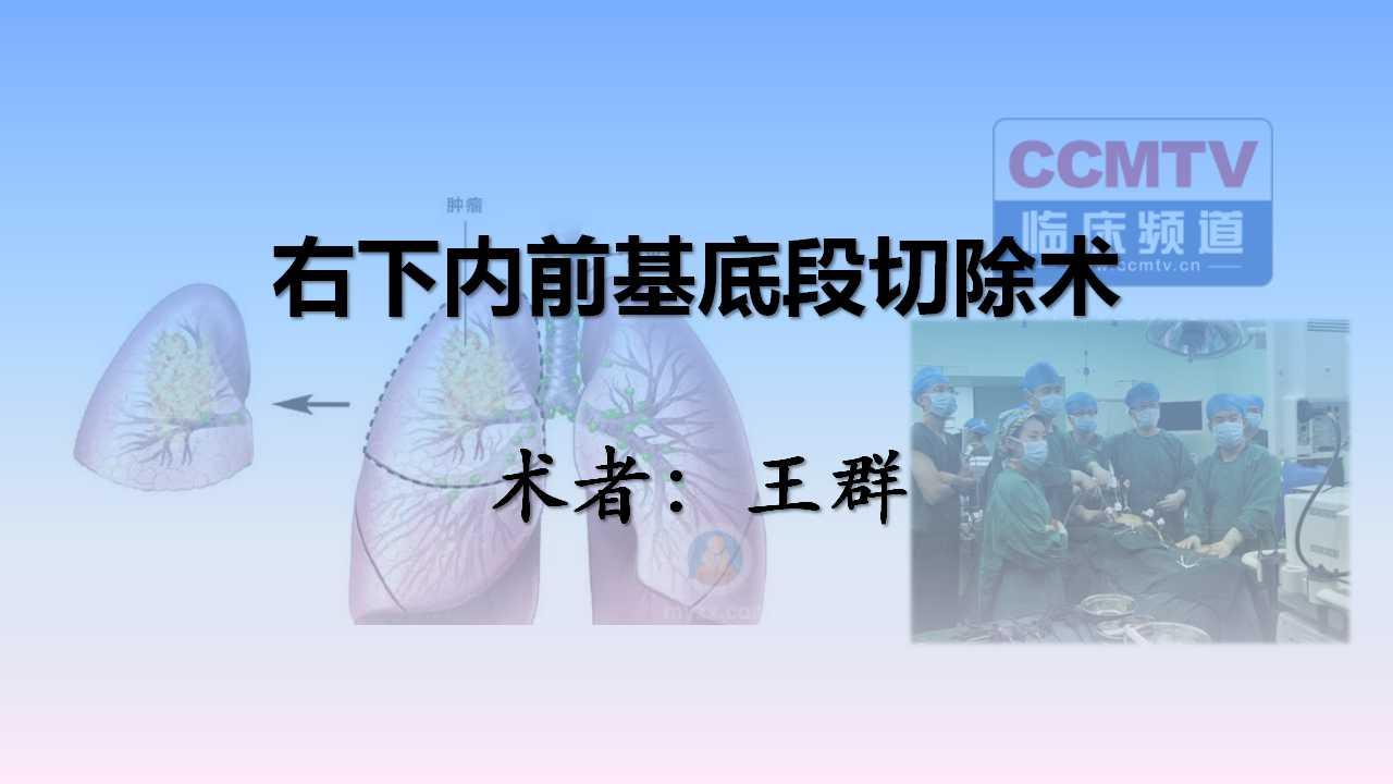 肺癌 手术 微创 王群:右下内前基底段切除术