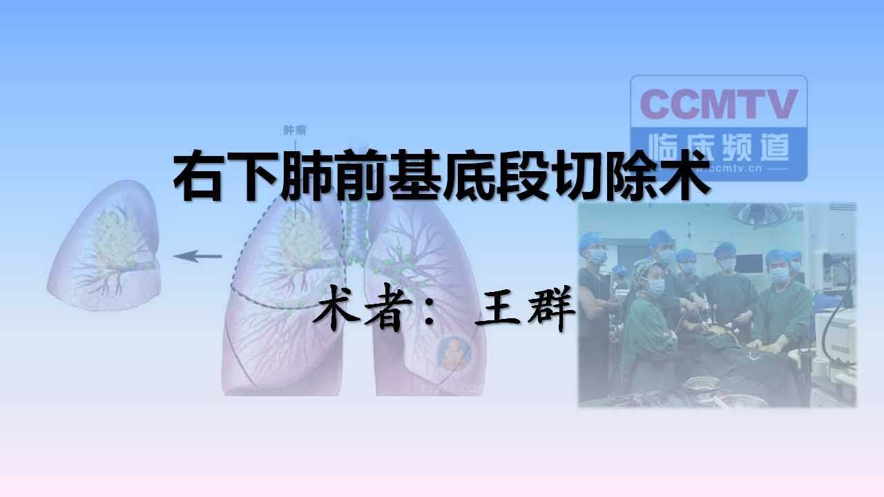 肺癌 手术 微创 王群:右下肺前基底段切除术