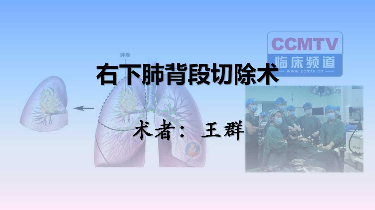 肺癌 手术 微创 王群:右下肺背段切除术