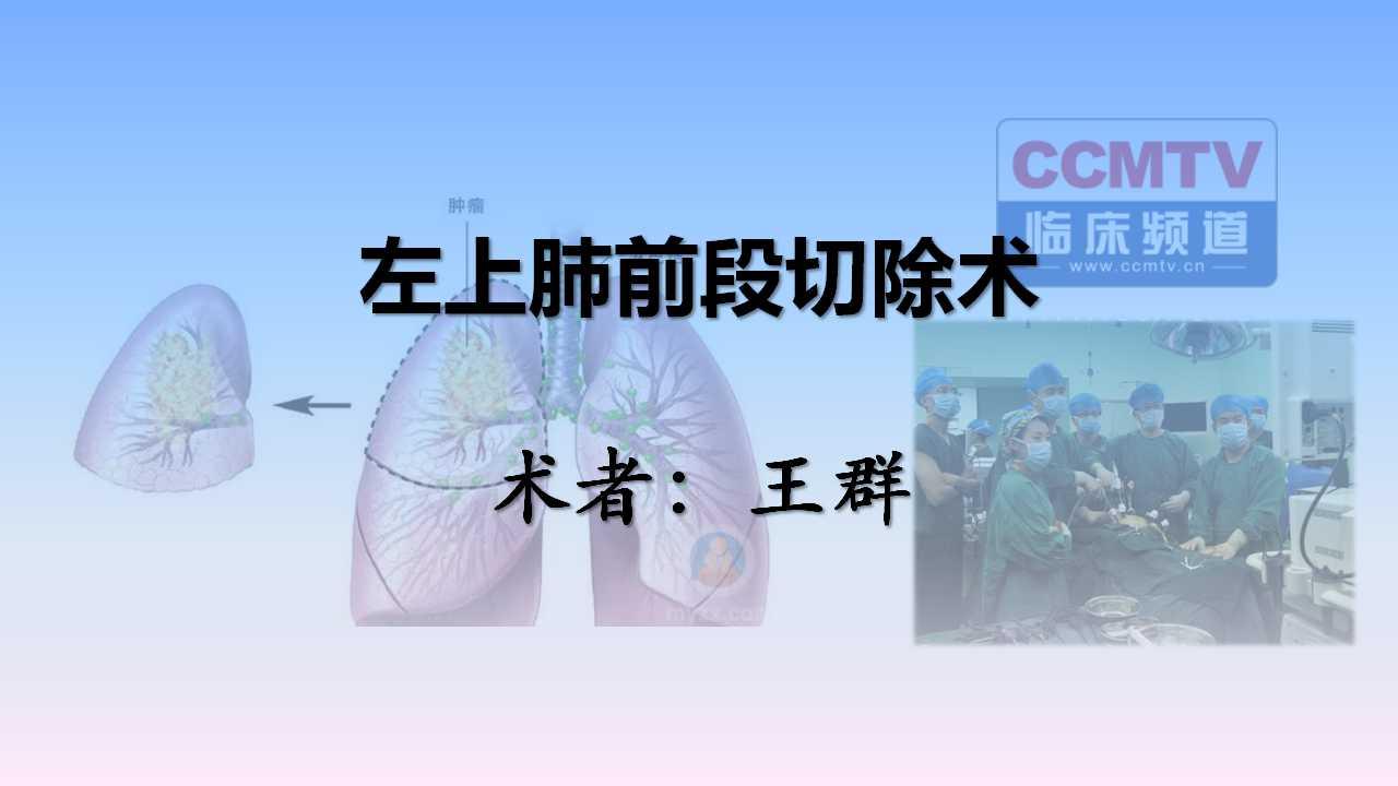 肺癌 手术 微创 肺段切除 王群:左上肺前段切除术