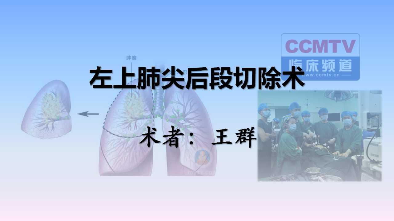 肺癌 手术 微创 肺段切除 王群:左上肺尖后段切除术