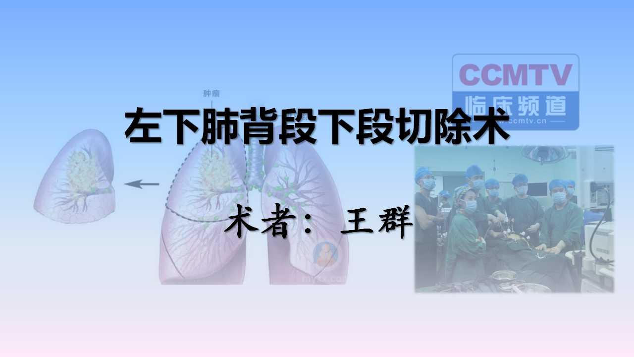 肺癌 手术 微创 肺段切除 王群:左下肺背段下段切除术