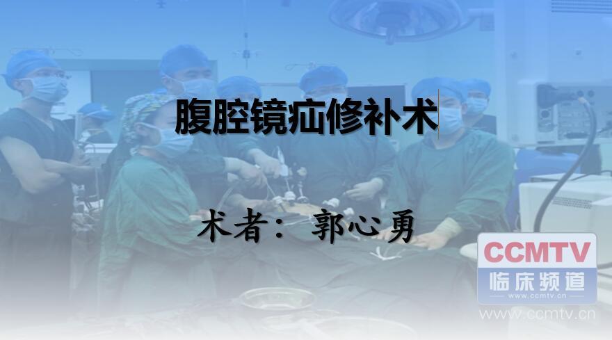 郭心勇:腹腔镜疝修补术