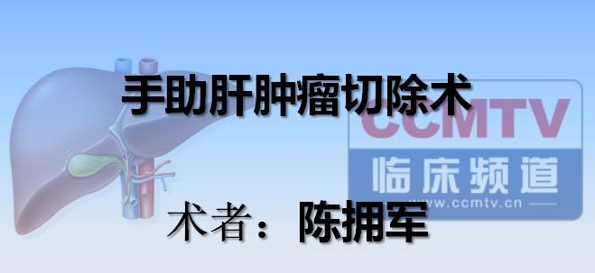 陈拥军:手助肝肿瘤切除术