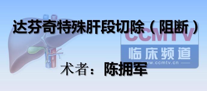 陈拥军:达芬奇特殊肝段切除(阻断)