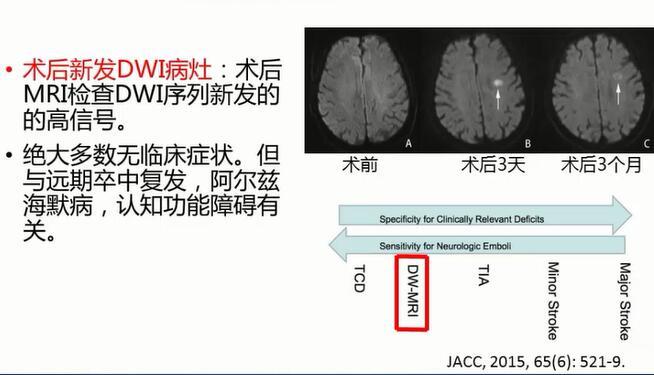 血管病 外科讲坛 郭大乔:颈动脉斑块形态学特征及其对预后的影响