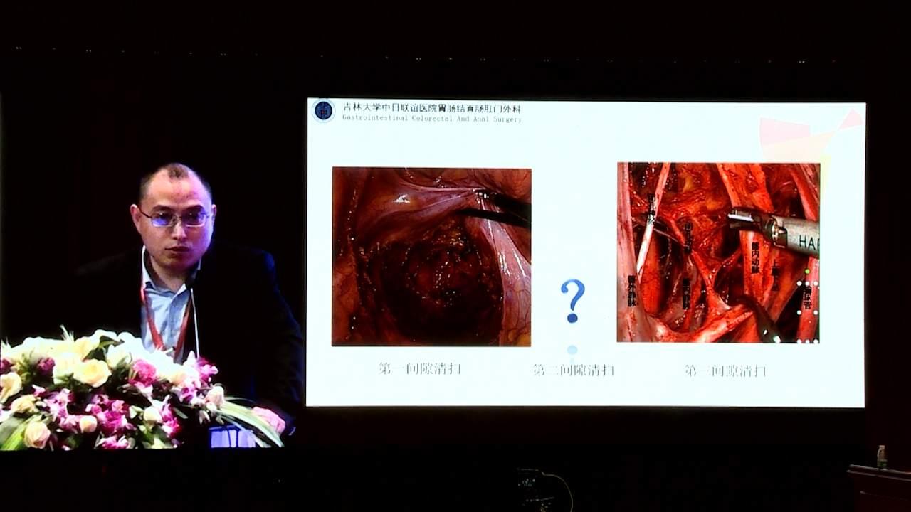 结直肠癌 外科讲坛 诊疗策略 房学东:腹腔镜辅助胃肠道肿瘤根治术神经保护的经验体会