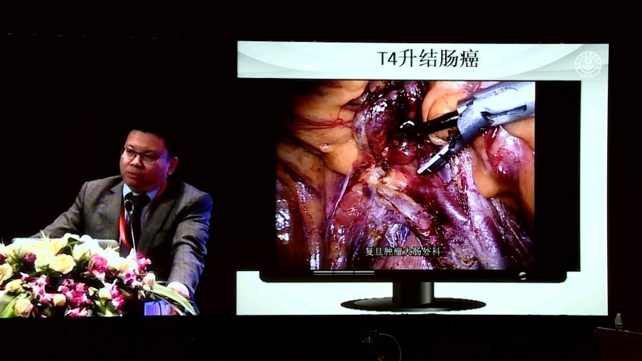 结直肠癌 外科讲坛 诊疗策略 李心翔:cT4结肠癌腹腔镜手术治疗策略与技巧
