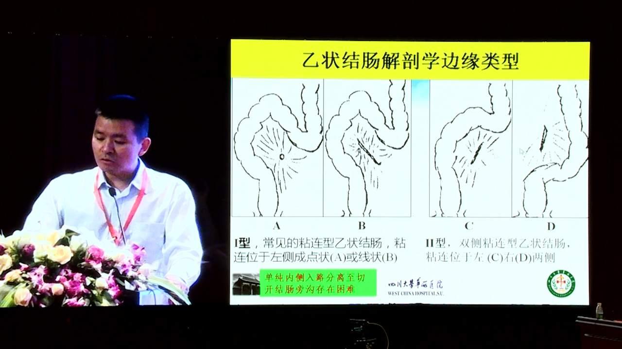 结直肠癌 外科讲坛 诊疗策略 王自强:腹腔镜下左半结肠切除关键技术