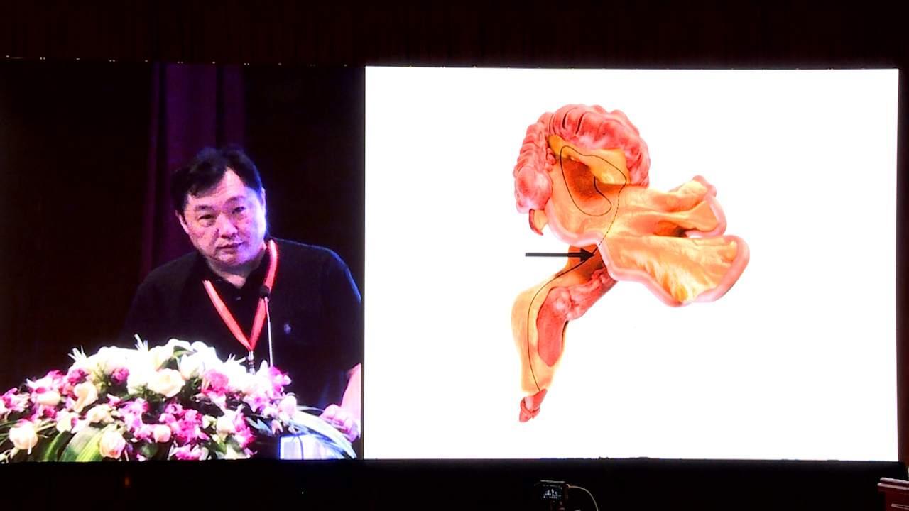 结直肠癌 外科讲坛 诊疗策略 龚建平:膜结构