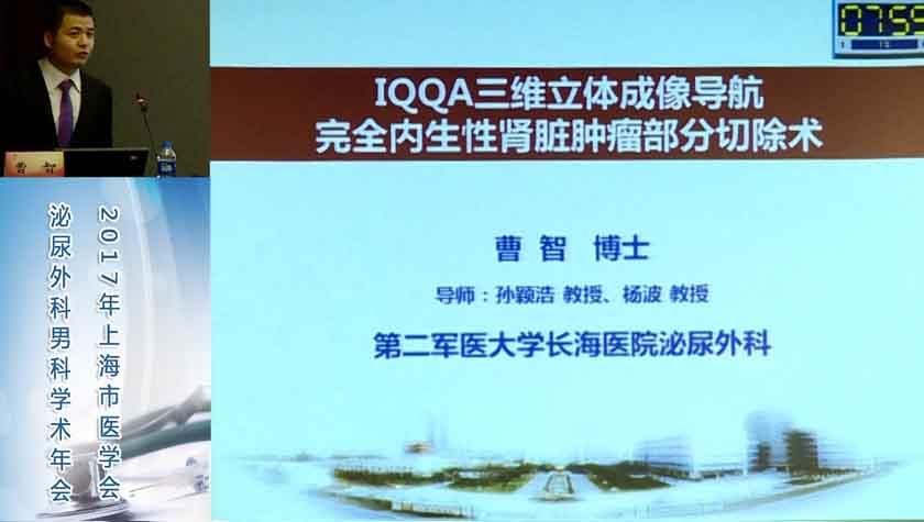 泌尿系疾病 外科讲坛 曹智:IQQA三维立体成像导航完全内生性肾脏肿瘤部分切除术