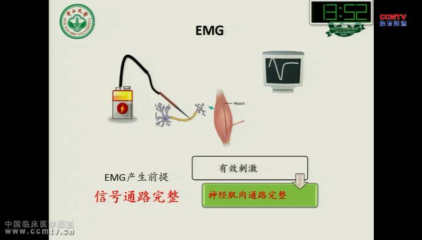 甲状腺疾病 诊断 神经监测 彭俊:甲状腺术中神经监测的麻醉与进展