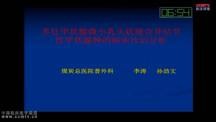 甲状腺癌 诊疗策略  李涛:多灶甲状腺微小乳头状癌合并结节性甲状腺肿的临床诊治分析