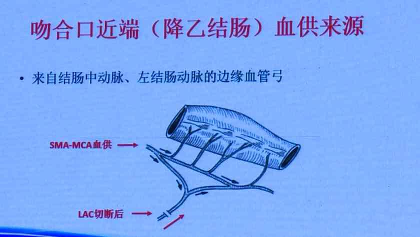结直肠癌 外科讲坛 微创 左结肠动脉 钟鸣:腹腔镜直肠癌手术中左结肠动脉的处理