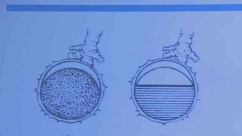 罕见疾病 诊疗策略 胸部包虫病 张力为:胸部包虫病的诊治专家共识解读