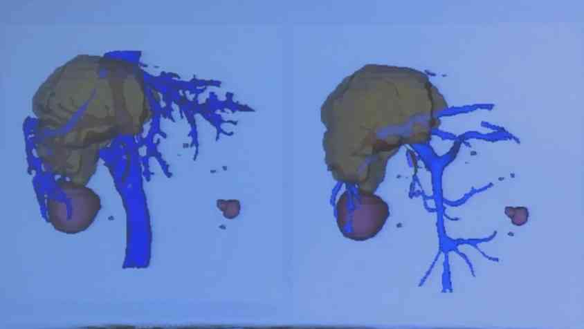 肝病 病例解读 包虫病 李明皓:复杂包虫病外科治疗病例分享