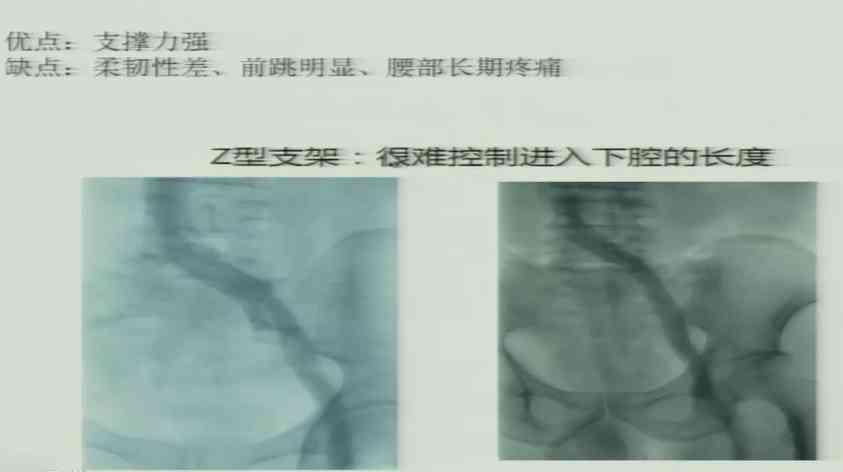 血管病 外科讲坛 髂静脉支架 郭曙光:髂静脉支架的植入时机和类型选择