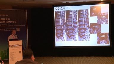 骨病 病例讨论 多节段 腰椎管狭窄 李方财:多节段腰椎管狭窄症