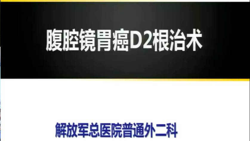 胃癌 外科讲坛 贾宝庆:腹腔镜胃癌D2根治术