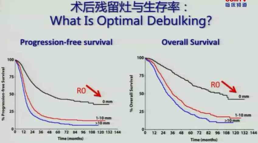 妇科肿瘤 综合治疗 吴小华:如何决定卵巢癌的新辅助化疗