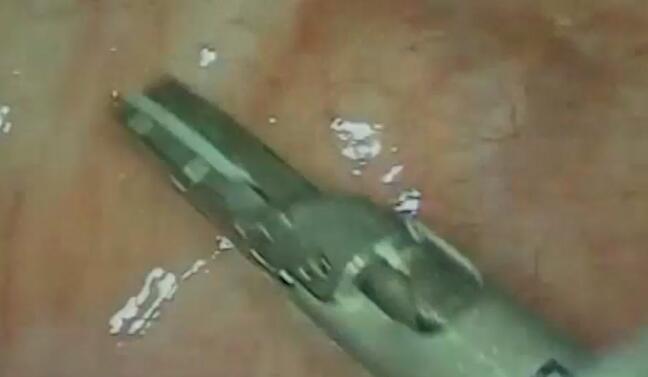 结直肠癌 手术 微创 腹腔镜 前腹腔镜下右半结肠癌根治术