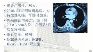 肺癌 病例讨论 在线MDT病例讨论:左侧持续性胸部刺痛,平卧加重病例